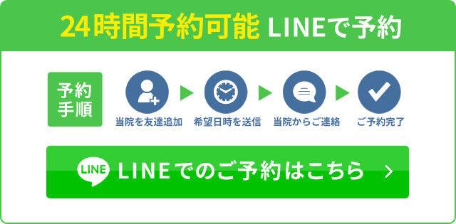 LINE予約バナー