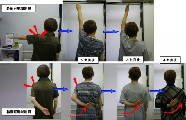 四十肩の結滞制限改善例
