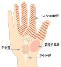 手根管症候群の症状