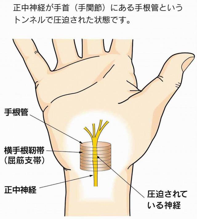 手根管と正中神経