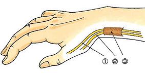 発症している筋腱部
