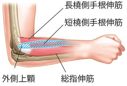 外側上顆と伸筋群