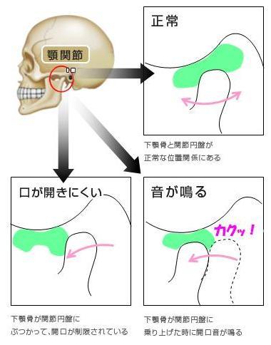 関節円盤の問題